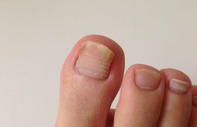 足の水虫と爪水虫は関係あるのですか?